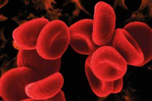 EMOARTE, Una Exposición solidaria a favor de la Asociación de Hemofilia, HEMOBUR