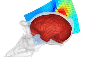 Primer estudio sobre la diferencia entre los lóbulos parietales de humanos y chimpancés