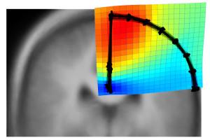 Un estudio investiga los pliegues internos de los lóbulos parietales superiores