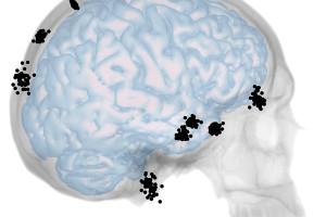 Se realiza un nuevo estudio sobre la integración entre cráneo y cerebro