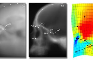 Nuevo estudio investiga un conflicto entre el desarrollo de los ojos y de la corteza cerebral